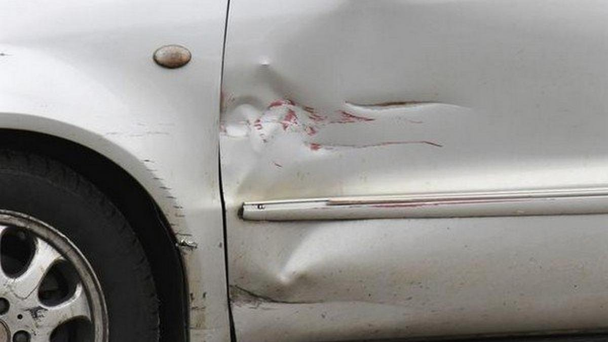 check accident history of car car scratches and dents