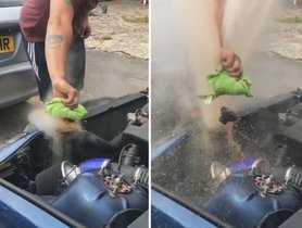 Teen Suffers Serious Burns On Removing Radiator Cap From Hot Car